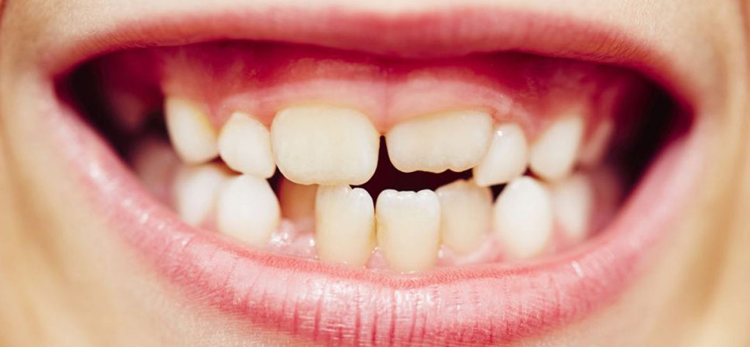 Apinyament dental, com corregir-lo?