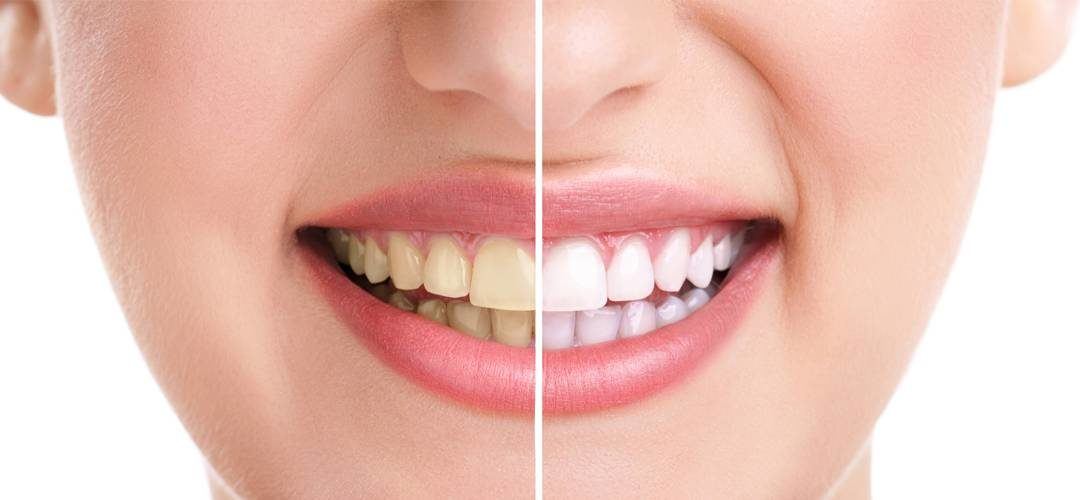 Claves para un blanqueamiento dental perfecto