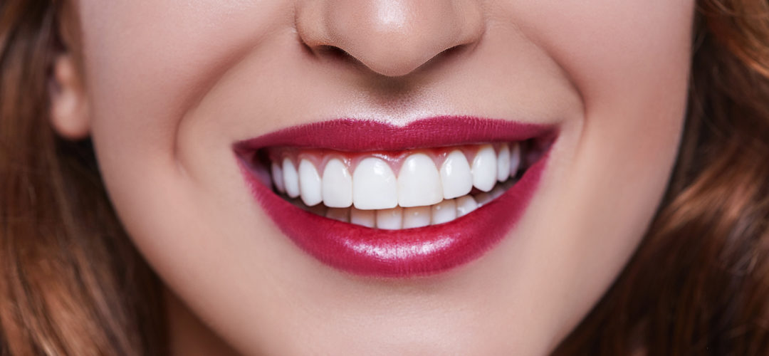 ¿Qué tipo de carillas dentales existen y cuánto duran?