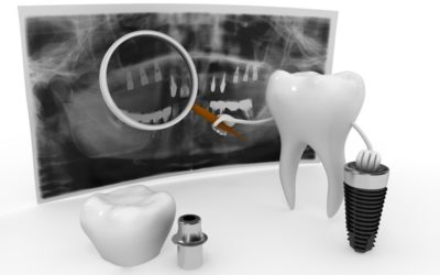 Rebuig en implants dentals