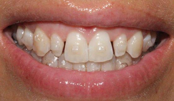 Antes y después ortodoncia e incisivos laterales restaurados con carillas dentales.