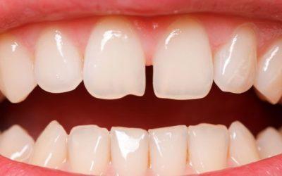 Diastema: com ajuntar les dents separades?